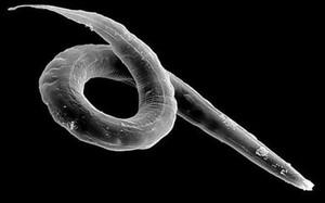 могут ли гельминты вызывать аллергию