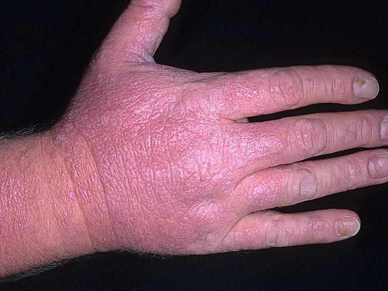 Заболевание на коже