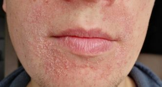 Шелушение на нижней части лица