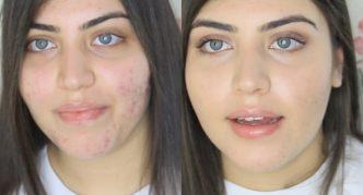 Лицо девушки с демодекозом и после его лечения