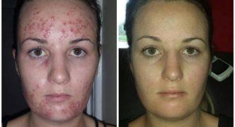 Демодекоз: до и после лечения