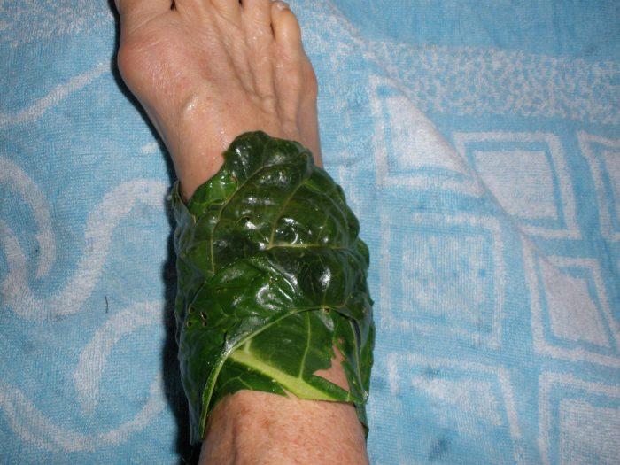 Нога, обмотанная капустным листом