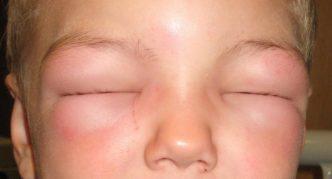 Проявление симптомов отёка Квинке на лице ребёнка