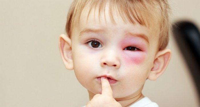 Ребёнок с отёком на глазу