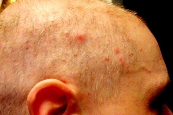проявления демодекоза на волосистой части головы