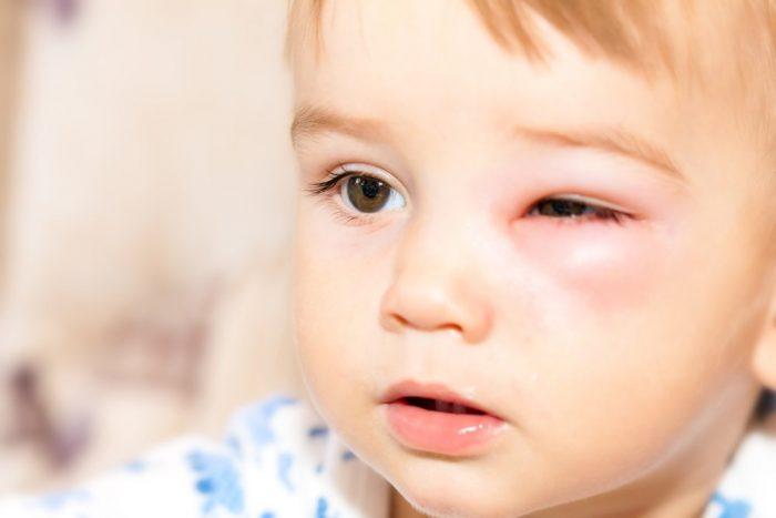 Аллергия на укус комара у ребёнка