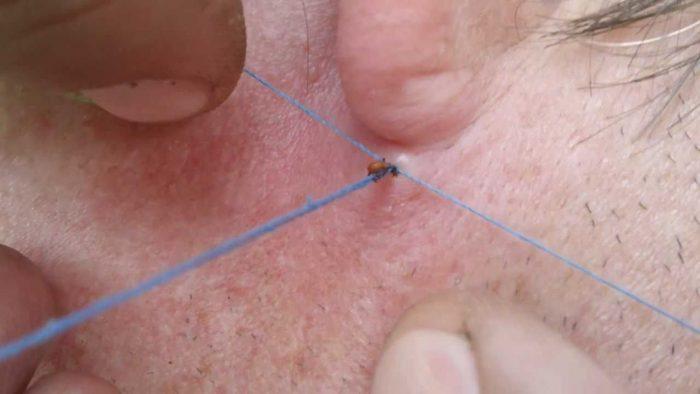 Удаление клеща из-под кожи