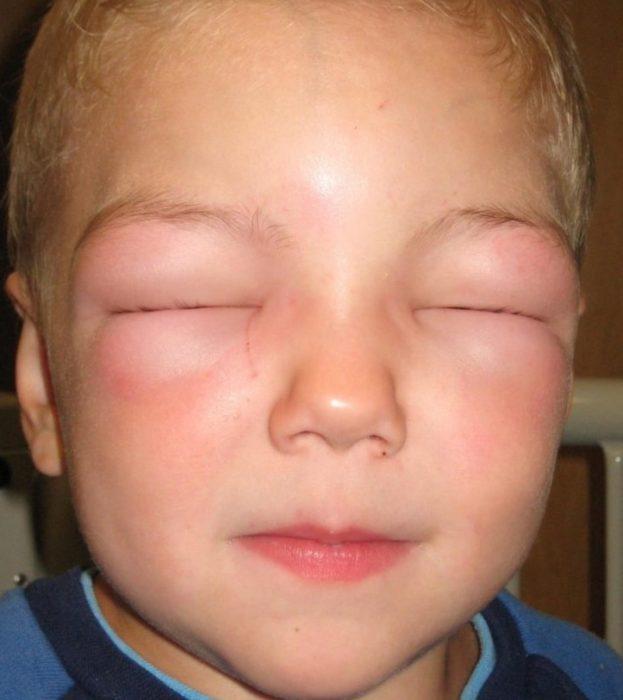Отекли глаза у ребёнка