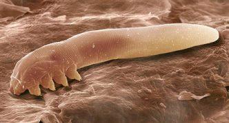 Подкожный клещ, длинный, как червь