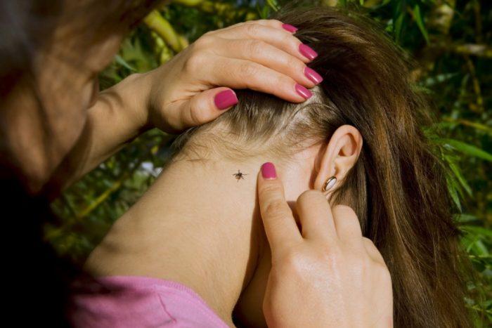 Девушке откинули волосы вперёд, на шее сидит клещ