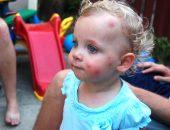малыша укусил комар