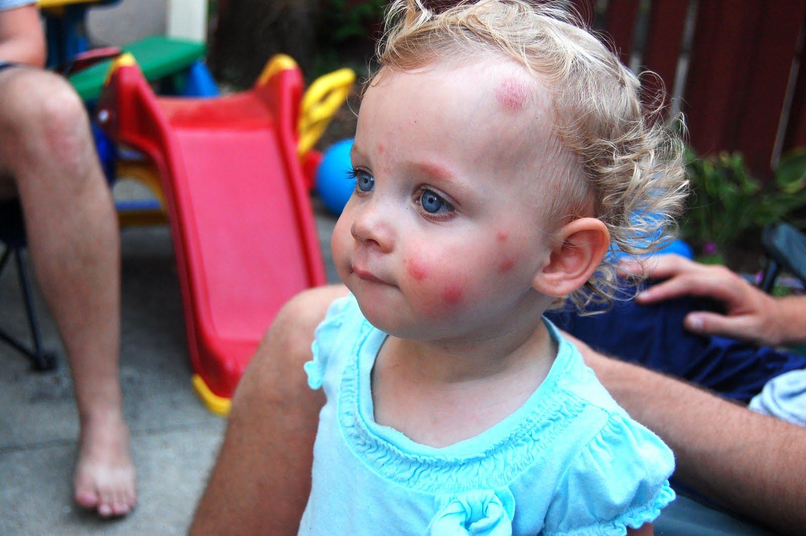 Что делать, если ребенка покусали комары