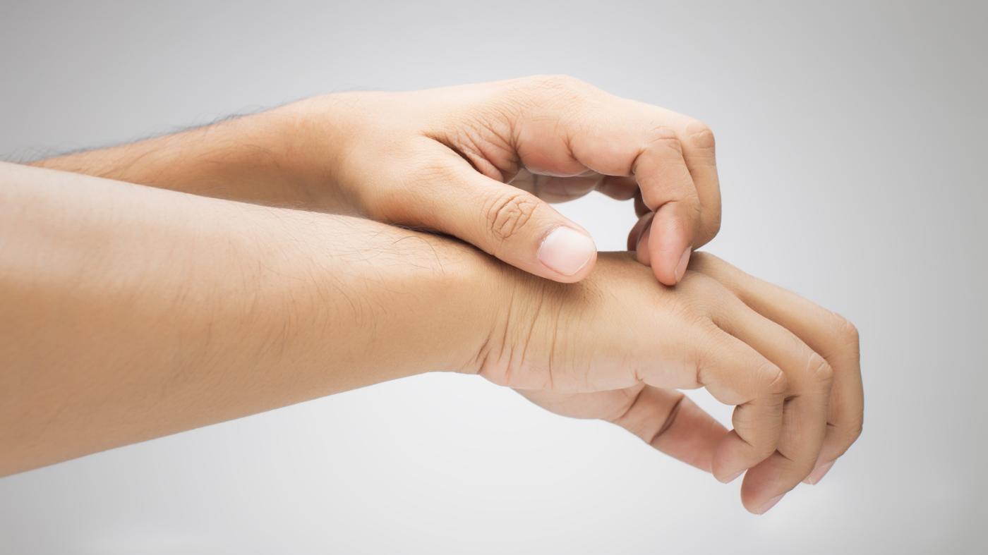 Постельные блохи: фото укусов и борьба с ними