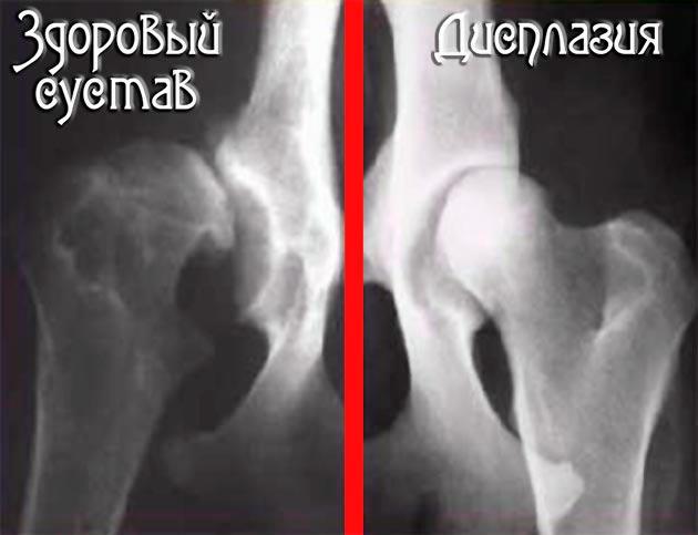 Рентген снимок дисплазии сустава